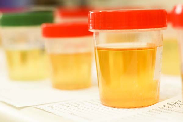 Can I Use A Urine Sample From A Different Gender To Pass My Drug Test